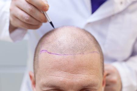 cirugia-capilar