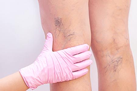 consulta-de-angiologia-y-cirugia-vascular