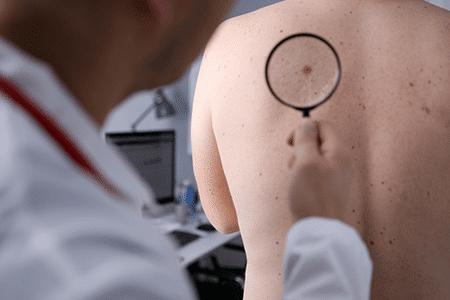dermatologia-clinica-en-madrid